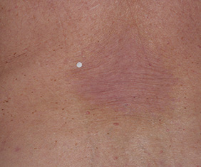 Anatomical of back on Visit 4 for Enstilar psoriasis treatment, some patients see visible signs of improvement as early as week 1