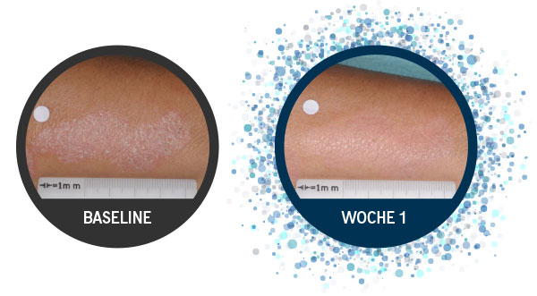Some Enstilar patients can see visible improvements as early as week 1, these images are of an individual psoriasis patient from baseline to week 1